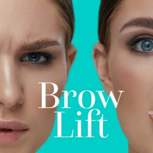 BrowLift1